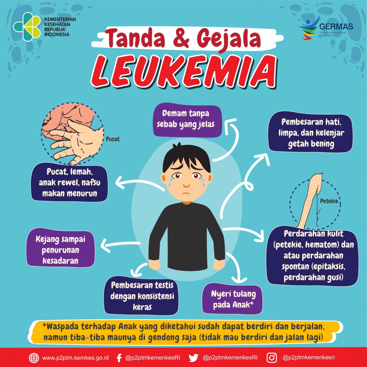 Tanda dan Gejala Leukemia (Kanker Darah) - Direktorat P2PTM