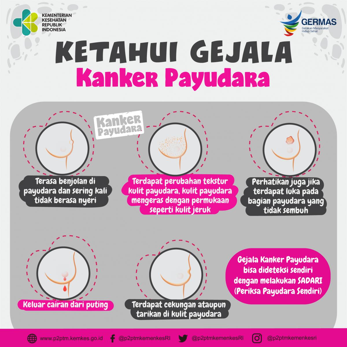 Waspada gejala kanker payudara - Direktorat P2PTM